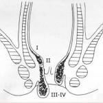 Divisione-della-patologia-emmoroidaria-in-I-II-III-e-IV-grado