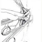 emorroidectomia-sec.-MILLIGAN-MORGAN-03