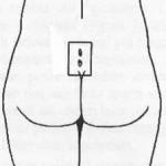 fistola-pilonidale