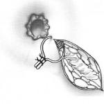 fistulectomia-parziale-e-cerchiaggio-con-setone1