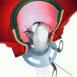 intervento-tecnica-Stappler-Fase-02