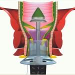 intervento-tecnica-Stappler-Fase-03 (1)
