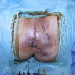 malattia-di-Verneuil-intervento-01