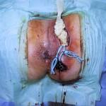malattia-di-Verneuil-intervento-02