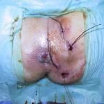 malattia-di-Verneuil-intervento-03