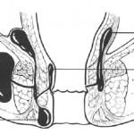 sedi-e-frequenza-dei-principali-ascessi-anali1