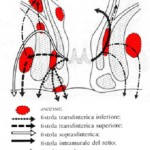 topografia-e-fisiopatologia-degli-ascessi-fistolosi-anali1